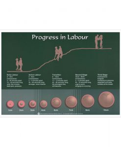 Progress in Labour Chart