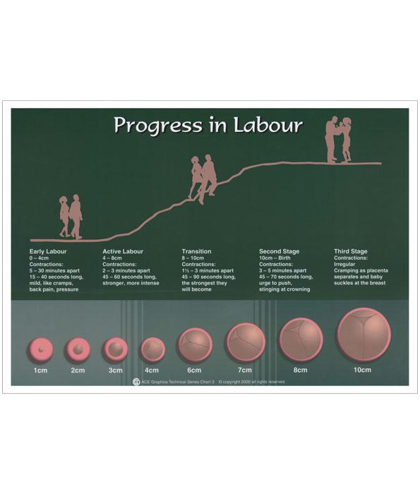 Progress in Labour Chart