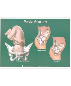 Pelvic Station Chart