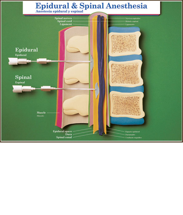 Epidural and Spinal Anaesthesia Chart
