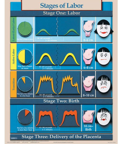 stages of labour chart