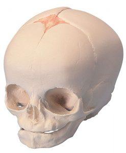 Fetal Skull 30 weeks